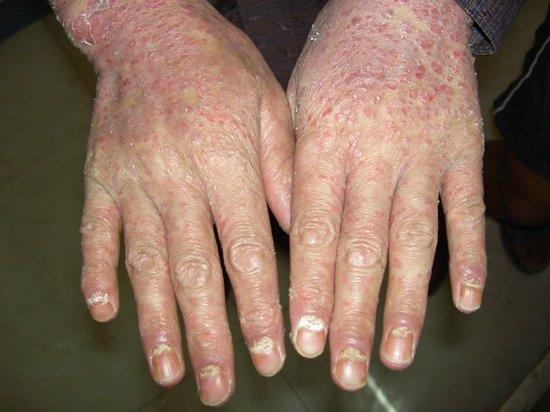 为什么手会患上银屑病
