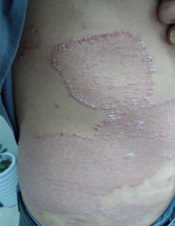银屑病患者的日常习惯要注意什么